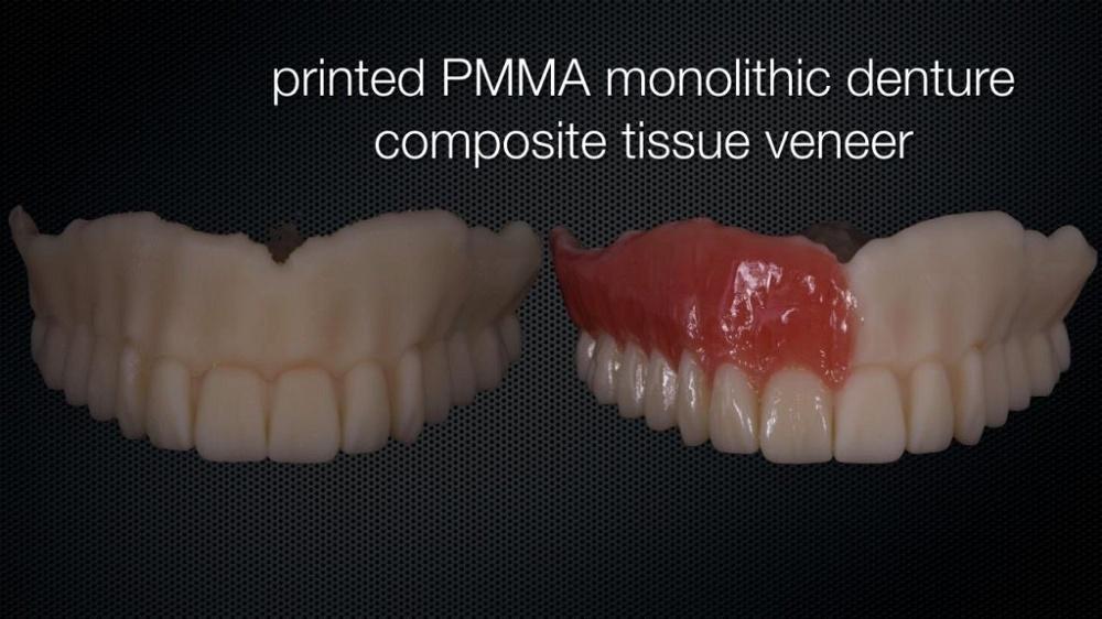 fully printed denture