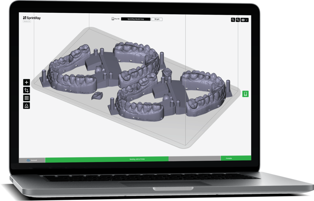 dental 3D printing software