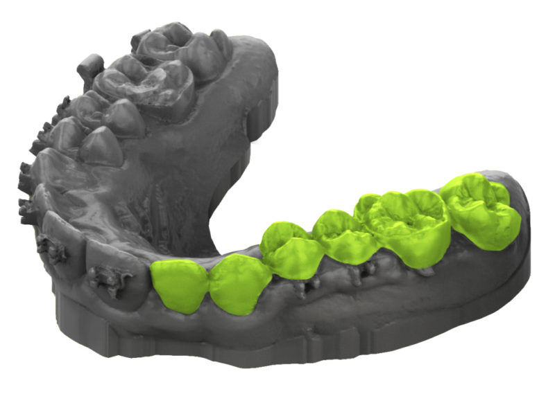 3D Print Clear Aligners